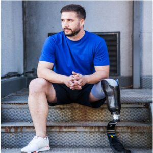 Photo of man with amputated leg